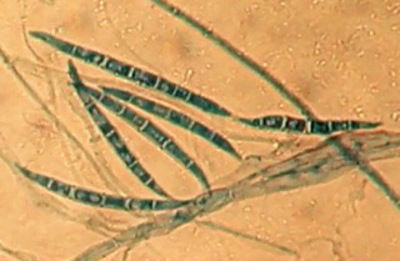Microbiote et contaminants alimentaires : une mycotoxine amplifie l'action génotoxique d'une bactérie intestinale