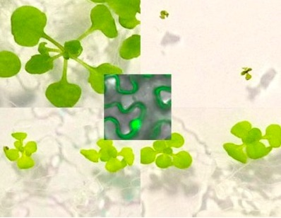 Croissance végétale et maladies humaines : des régulations communes décryptées